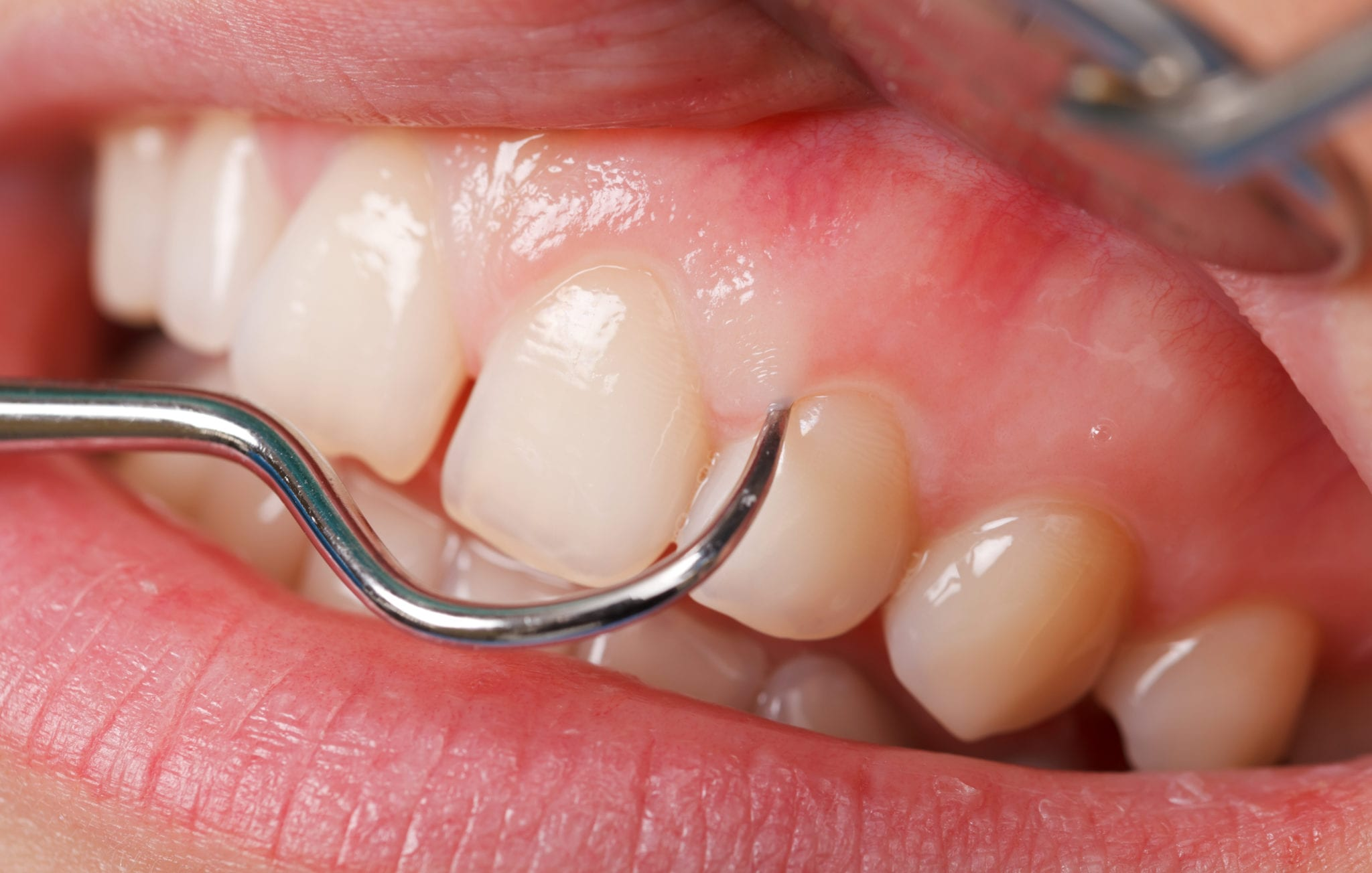 Closeup of teeth receiving a dental cleaning.
